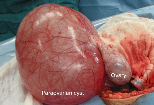 Ovarian Cysts Functional Or Neoplastic Benign Or Malignant