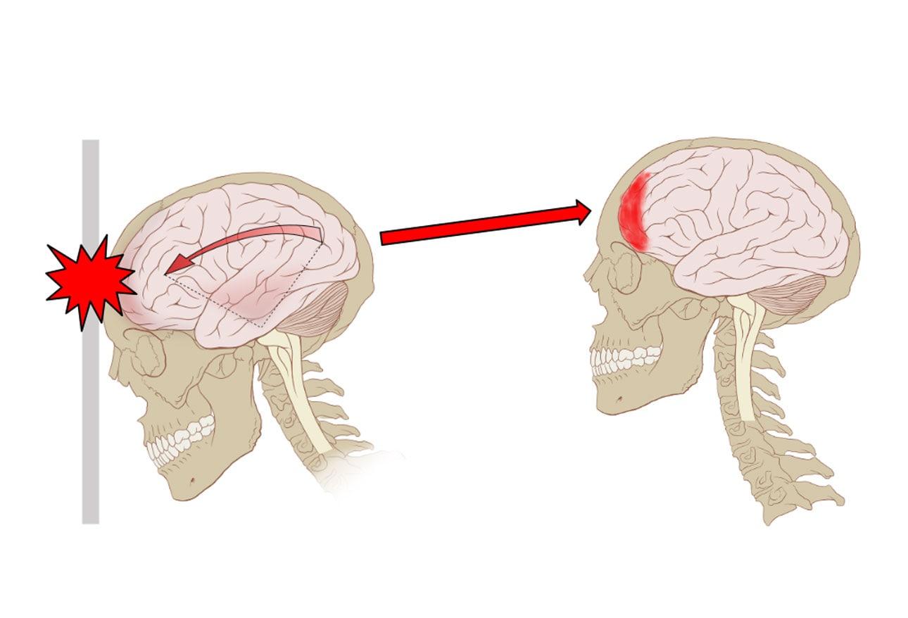 diagram of concussion mri wiring diagram