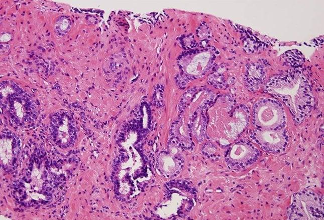 tumore prostata icd 9 codes