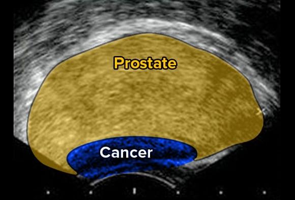 prostate cancer screening medscape)