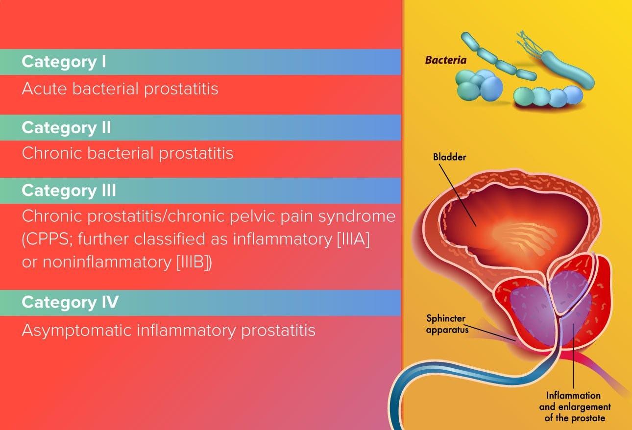 prostatitis fever
