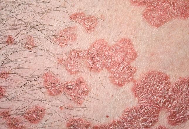 plaque psoriasis medscape