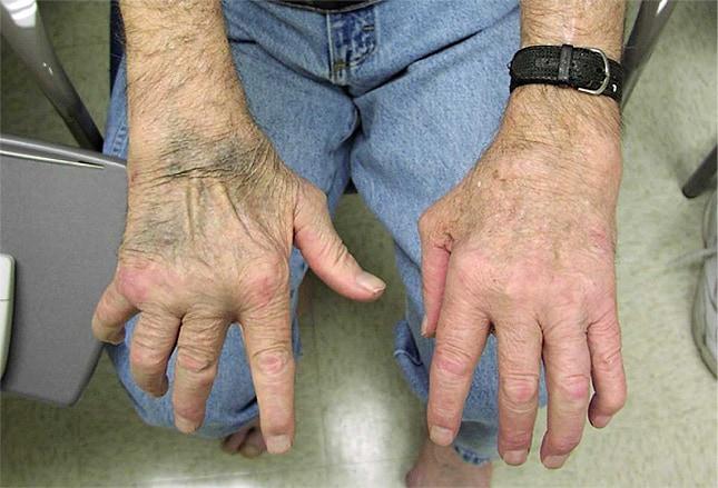 Diagnosing and Treating Rheumatic Skin Disorders
