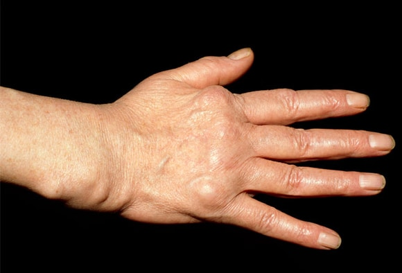Rheumatoid Arthritis In And Out Of The Joint