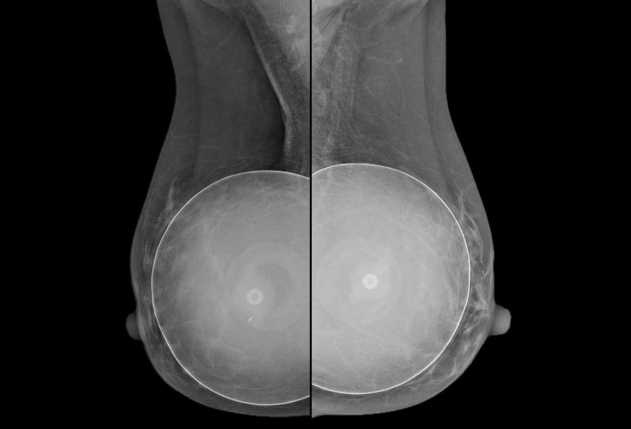 Silicone implant rupture dangers