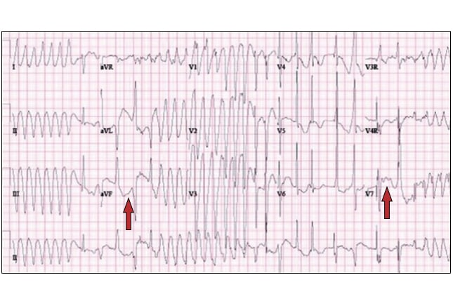 Severe Arrhythmia in an Elderly Patient