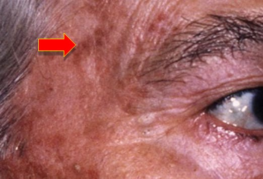 Can You Recognize Benign Skin Lesions From Cancerous Ones?