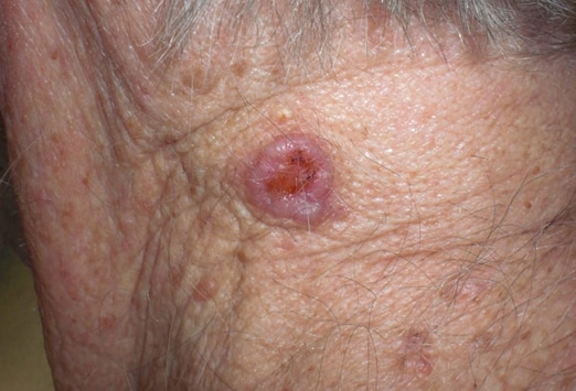 Can You Recognize Benign Skin Lesions From Cancerous Ones