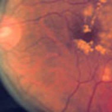 Focal or grid photocoagulation in macular edema fr