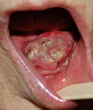 Squamous cell carcinoma of floor of mouth in middl
