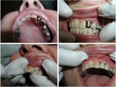 Transmucosal abutment placed over the implant and