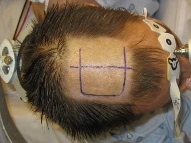 Surgical site preparation for corpus callosotomy.