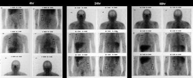 Sarcoidosis, thoracic. Gallium-67 scans in a patie