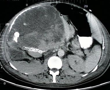 A 68-year-old woman with a large right upper quadr
