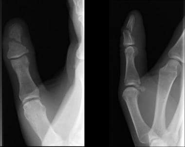 Oblique fracture of the shaft of the terminal phal