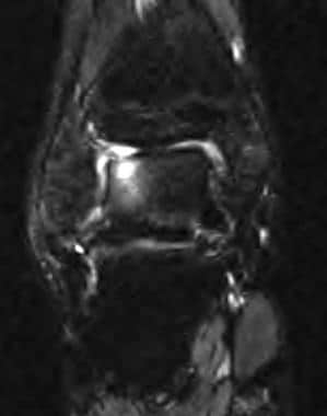 Coronal T2-weighted image demonstrates an articula