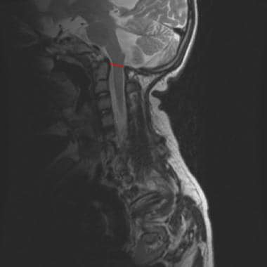 Midline sagittal T2-weighted magnetic resonance im