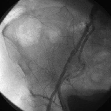 Preangioplasty left superficial femoral artery ang