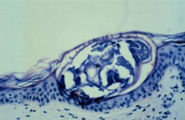 Scabies mite in the stratum corneum. Courtesy of W