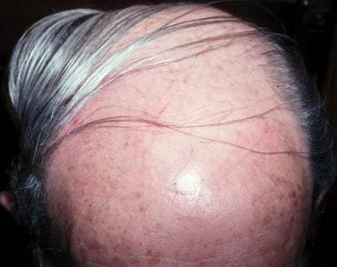 Final appearance of the rotation flap scalp repair