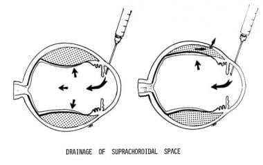 Drainage of suprachoroidal space. After the poster