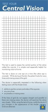 An Amsler grid is used to assess the central porti