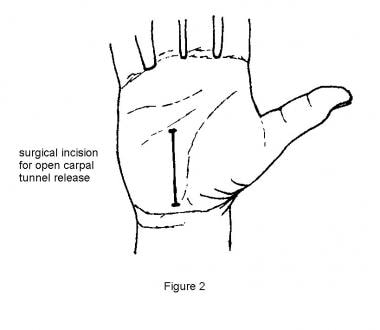 Surgical incision for open carpal tunnel release.