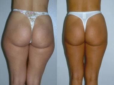 Body contouring with buttocks surgery. Preoperativ