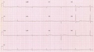 Junctional bradycardia due to profound sinus node