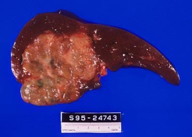 Fibrolamellar carcinoma: Note the large tumor size