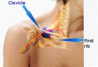 This figure shows the area where the subclavian ve