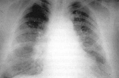 Chest radiograph of a 36-year-old chemical worker