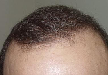 Case 2. Close-up view of the hairline of a patient