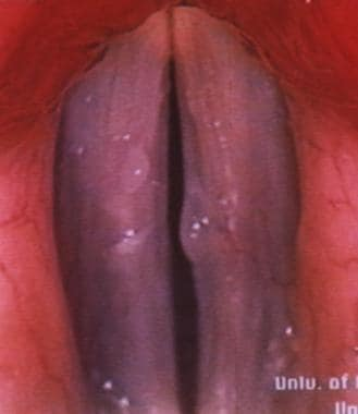 Vocal fold polyp (VFP) found during office videost