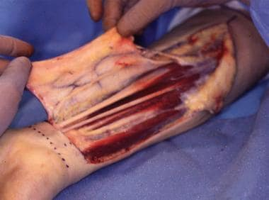 Subfascial dissection is performed under the fasci