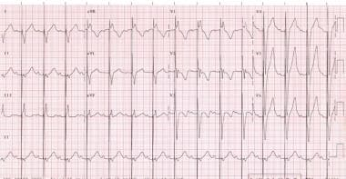 This is a 12-lead electrocardiograph (ECG) of a 2-