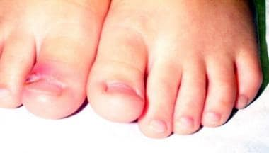 Right great toe paronychia in a 3-year-old child.