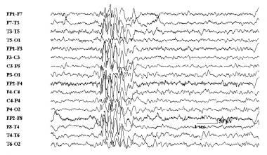 Electroencephalogram demonstrating polyspike and w