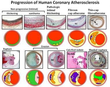 Atherosclerosis pathology. Spectrum of representat