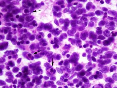 Anaplastic medulloblastoma showing significant cyt