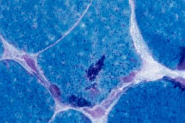 Nemaline myopathy on trichrome stain. One myofiber
