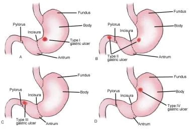 Types of gastric ulcers.