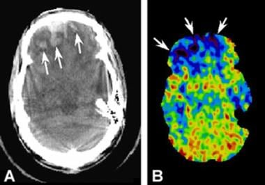 Comparison of a CT scan with a xenon blood-flow ra