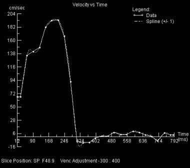 Aortic velocity vs. time plot from the phase contr