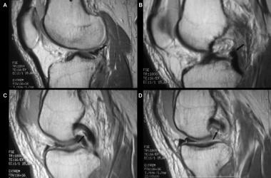 Proton-dense sagittal images of the knee. The cour