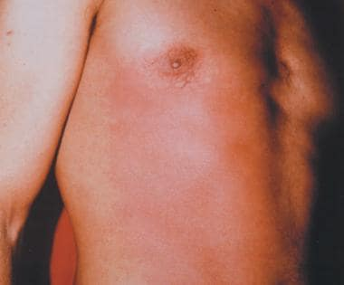 Early erythema in the frontal and antelateral righ