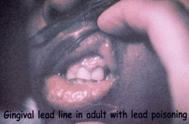 Lead line on the gingival border of an adult with