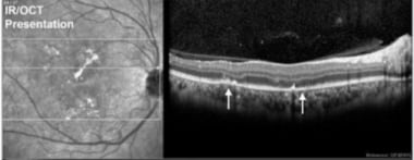 Note the disruption of RPE/outer retina that corre