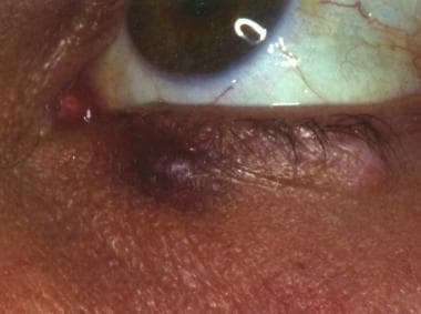 Kaposi sarcoma involvement of the eyelid. Courtesy