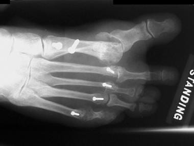 Anteroposterior radiograph of foot shows iatrogeni